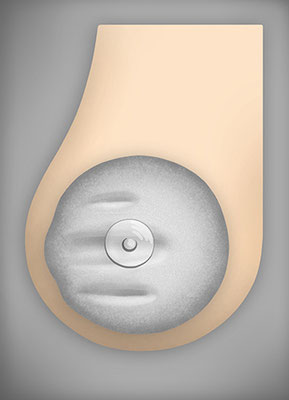BREAST PROTHESIS – rippling