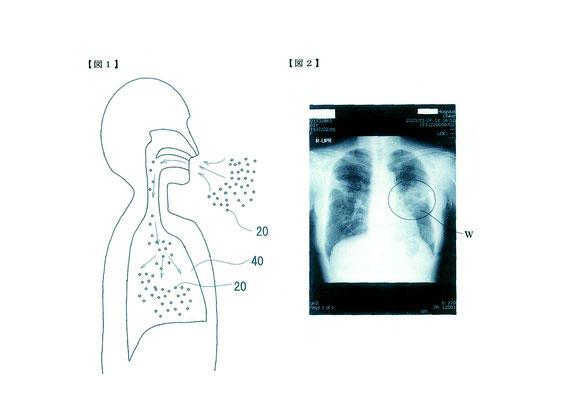 どのように非結核性抗酸菌症が改善されたか