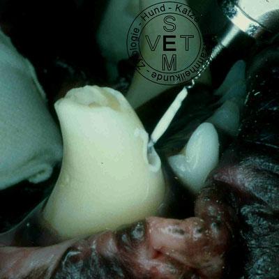 Wurzelkanalbehandlung - Einfüllen des Sealers mit der Lentulospirale über ein Hilfsloch nach Bodingbauer