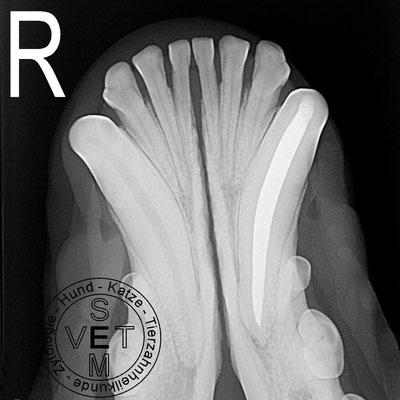 Wurzelkanalbehandlung - Röntgenbild nach der Behandlung