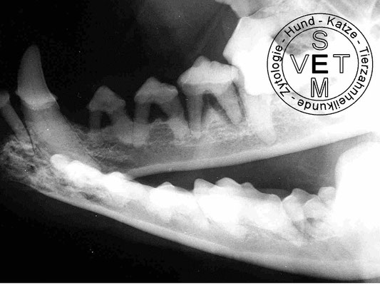 Horizontaler Knochenabbau in Folge einer Parodontis