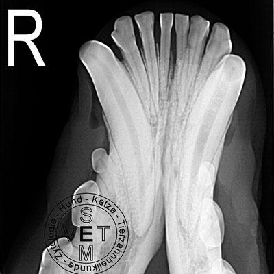 Wurzelkanalbehandlung - Röntgenbild vor der Behandlung