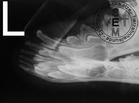 Röntgenbild Unterkiefer linksseitig seitliche Sicht