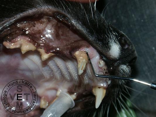 tiefe parodontale Tasche - Parodontitis
