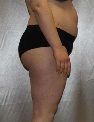 NACHHER - minus 12 kg, Taillenumfang minus 22 cm