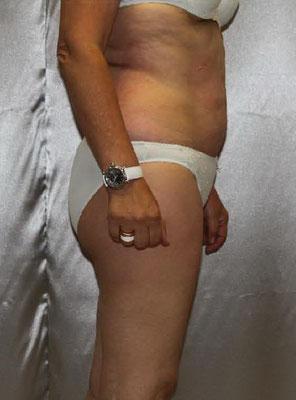 NACHHER - minus 7 kg, Taillenumfang minus 14 cm