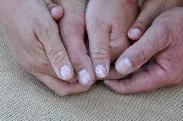 Avoir les mains pleines de pouces
