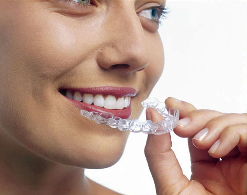 photo invisalign1
