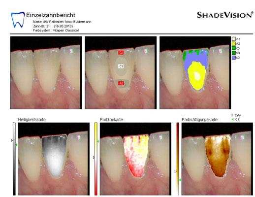 Farbkarte zur genauen Bestimmung der Zahnfarbe