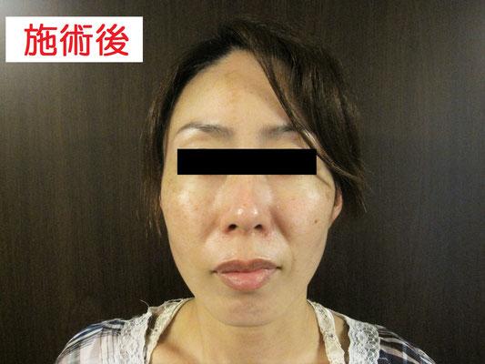 40歳・女性。施術後、正面画像。