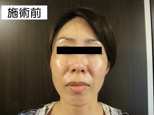 40歳・女性。施術前、正面画像。