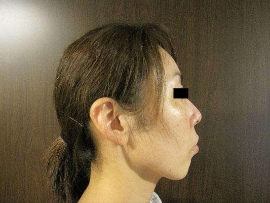 40歳・女性。施術前、右向き画像。
