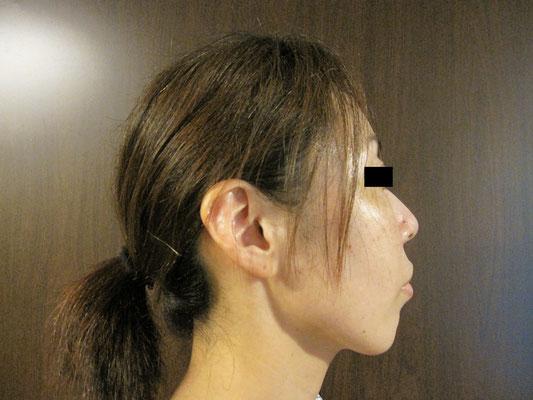 40歳・女性。施術後、右向き画像。