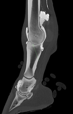 Multiple partial and full thickness lesions of the hyaline cartilage in the MCP joint