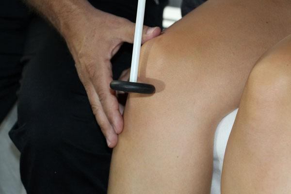 Test des Patellarsehnenreflex