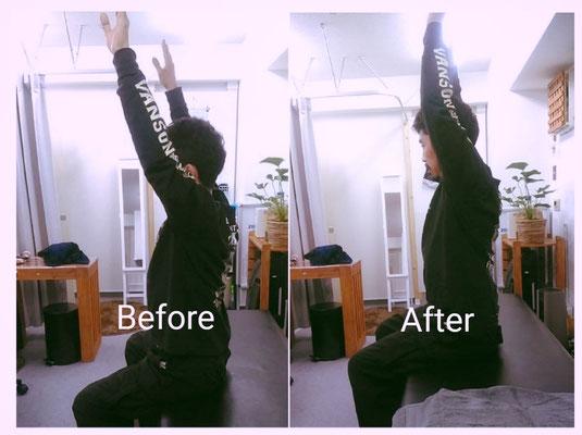肩関節の屈曲可動域の変化