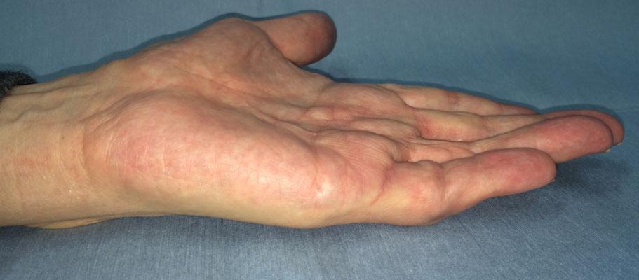 酵素注射療法、治療後(中指:3ヶ月、小指:1ヶ月)
