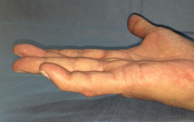 酵素注射療法、治療後(小指 3ヶ月)