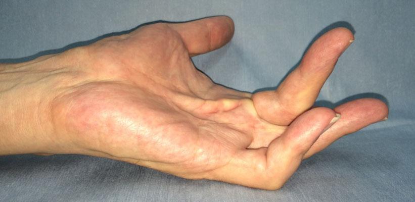 酵素注射療法、治療前(他院での手術後9年)