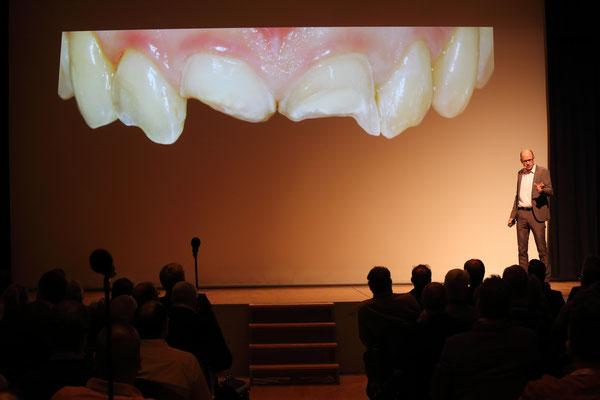 Zahngipfel 2015 Vollkeramik-Symposium Fortbildung