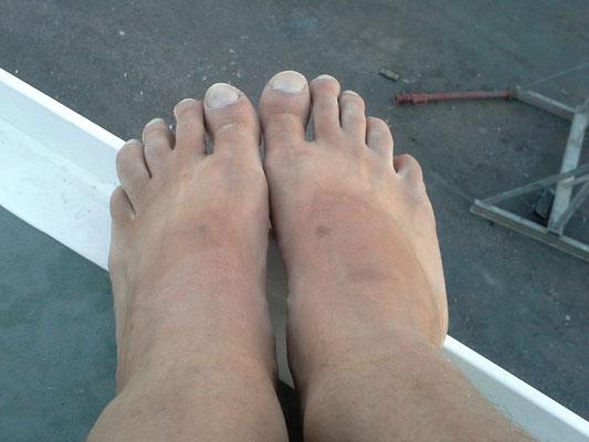 heiß und staubig macht solche Füße