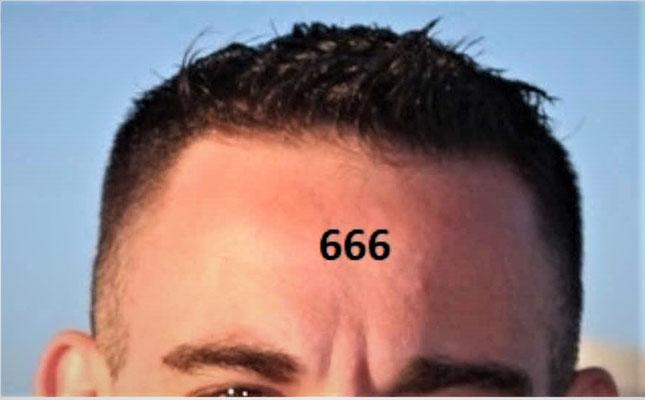 La marque sur le front et sur la main constitue un symbole d'allégeance à l'organisation internationale dirigée par l'antichrist.