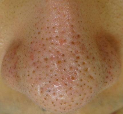 治療 いちご 鼻 トレチノイン治療2クール目成功?失敗?いちご鼻(毛穴)への効果