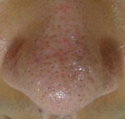 治療 いちご 鼻 鼻の黒ずみ・いちご鼻