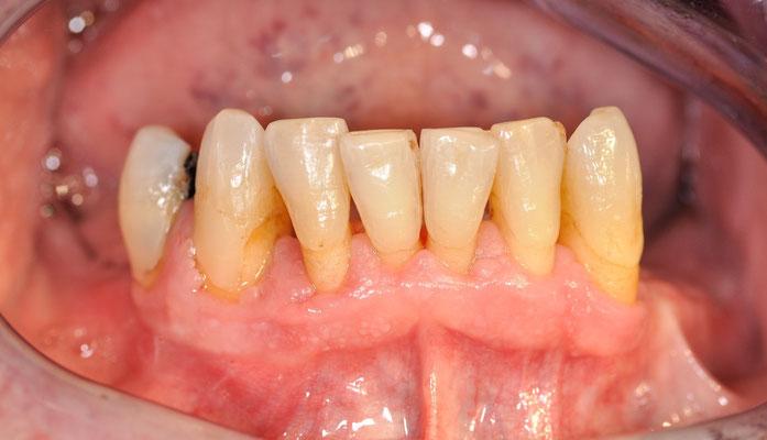 Abb. 5: 16.12.2014 keine Blutung auf Sondieren, STI an allen Zähnen https://upload.wikimedia.org/math/6/d/a/6dad6ac 131d6927ca3f51df6e9414892.png 3mm