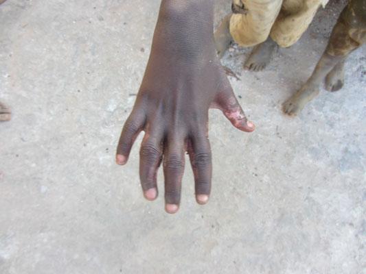 Assans Hand