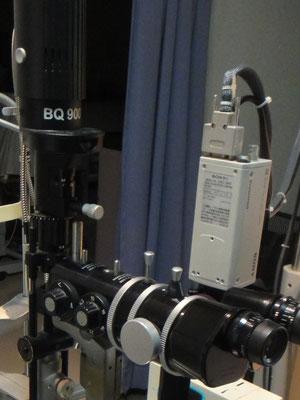 細隙灯顕微鏡