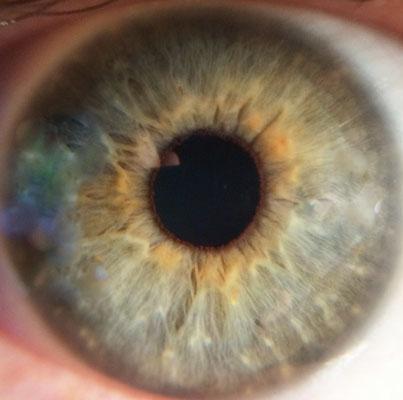 Augendiagnose