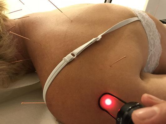 healthPi Gesundheitsplan Arthrose - Akupunktur+Laser