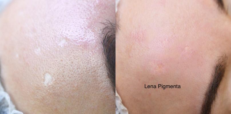 Medizinische Mikropigmentation bei Pigmenta Skin