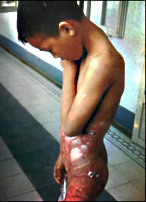 Ein Kind als Napalmopfer. Publiziert im Januar 1967 Ramparts Magazine. Es war das erste Bild eines zivilen Napalmopfers in Vietnam, das in den USA verbreitet wurde.