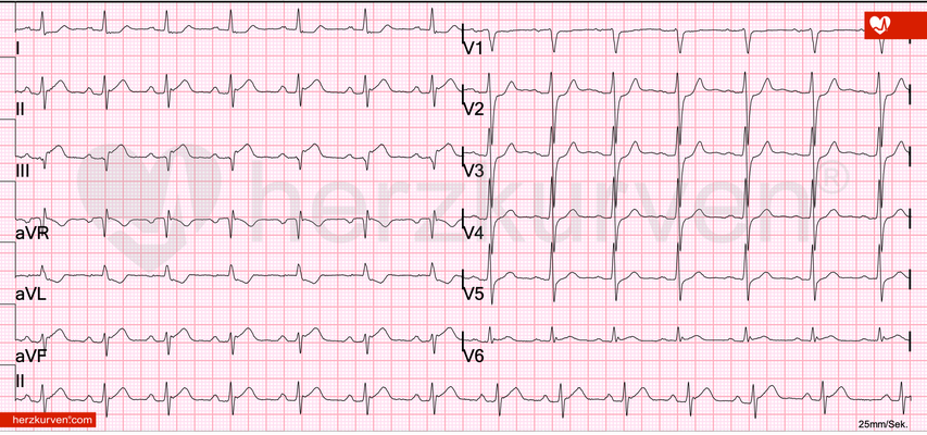 STEMI inferior