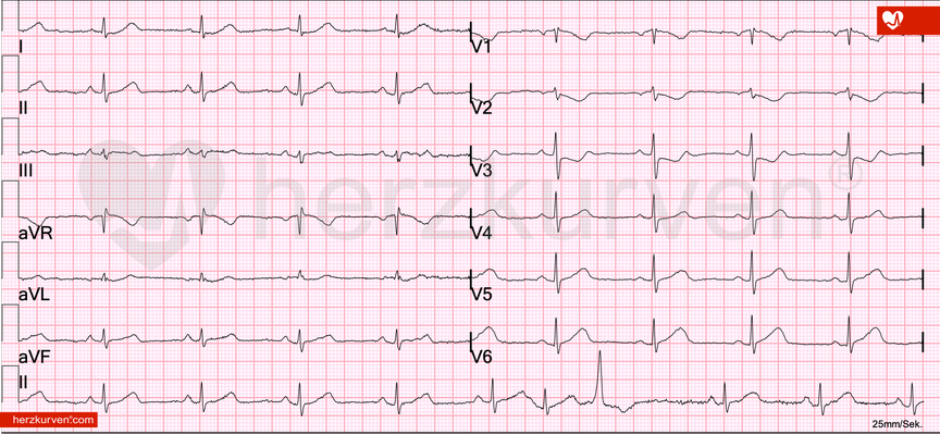 ST-Strecken Senkungen in V1-V3 bei proximalem RCX-Verschluss