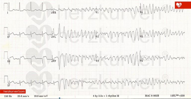 Torsade-de-Pointes-Tachykardie bei Long-QT i.R. eines inferioren STEMI.