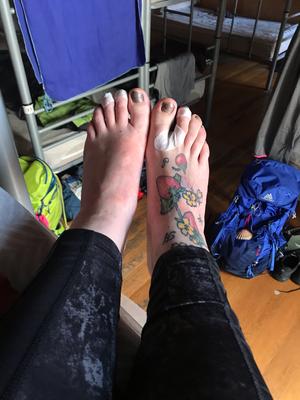 meine Füße an diesem Tag, abkleben ist einfach alles ;-)