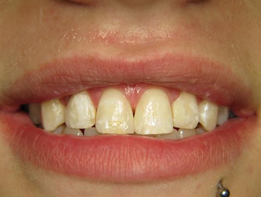 Nachher: Die Frontzähne wurden mit Kunstoff verbreitert und die Zahnlücke geschlossen.