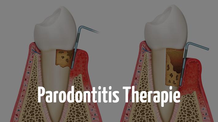 Parodontitis Therapie beim Zahnarzt in Bern
