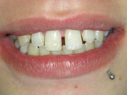 Vorher: Die Patientin stört die breite Zahnlücke