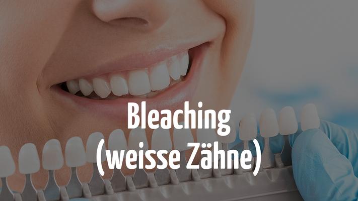 Weisse Zähne mit Bleaching beim Zahnarzt in Bern