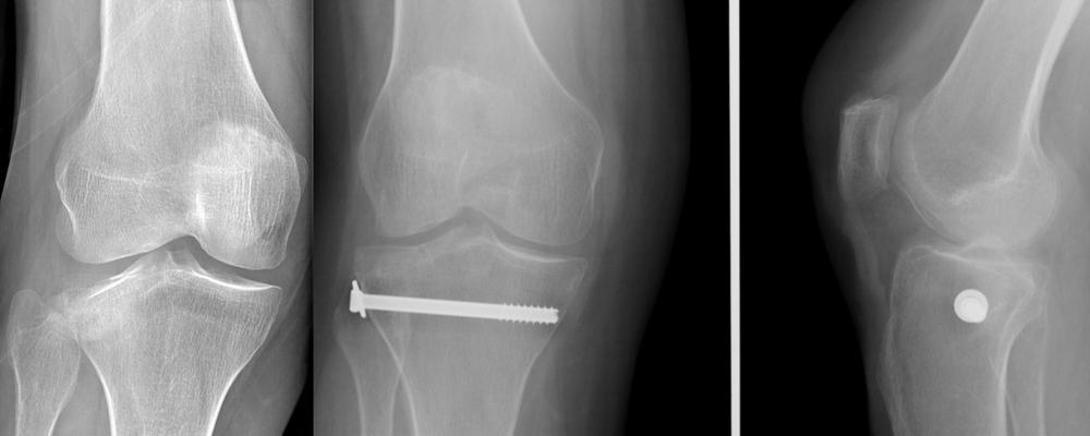 radio fracture enfoncement du plateau tibial Schatzker 2, chirurgie du sport : vissage sous arthroscopie et radio, percutané. Appui contact 2 mois et demi et mobilisation immédiate