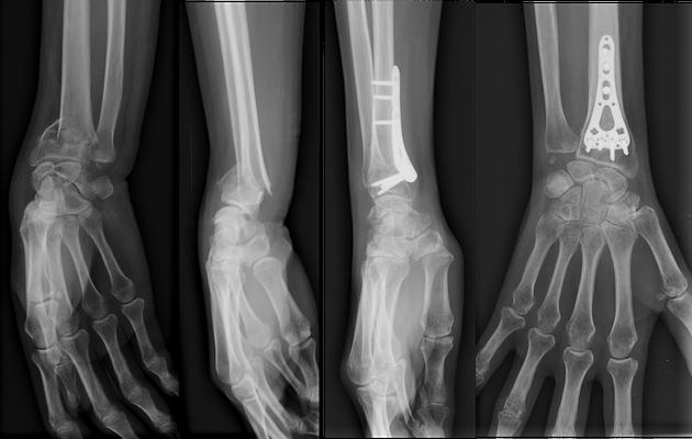 radio fracture du poignet Gerard Marchant, chirurgie du sport : plaque antérieure. Mobilisation douce immédiate. Attelle amovible 10 jours.