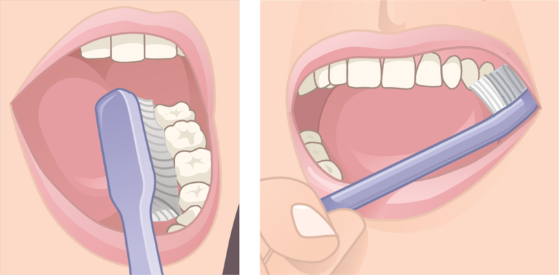 Appoggiare le setole dello spazzolino sulla gengiva  e spazzolare i denti muovendosi in verticale dalla gengiva al dente sia nella parte interna che esterna per allontanare la placca dal dente