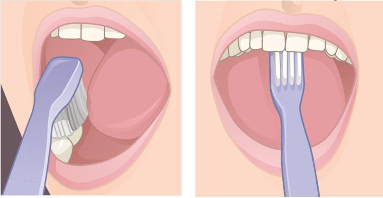 Lo spazzolamento orizzontale deve essere limitato alla superfici masticanti. Con la punta dello spazzolino pulire la parte interna dei denti anteriori, superiori ed inferiori
