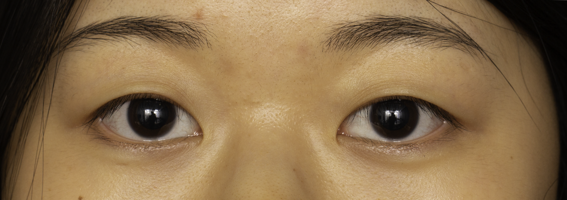 Pre-operative photo of Asian female with no upper eyelid fold considering Asian blepharoplasty surgery