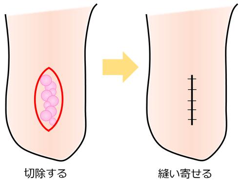 リンパ小疱 切除術
