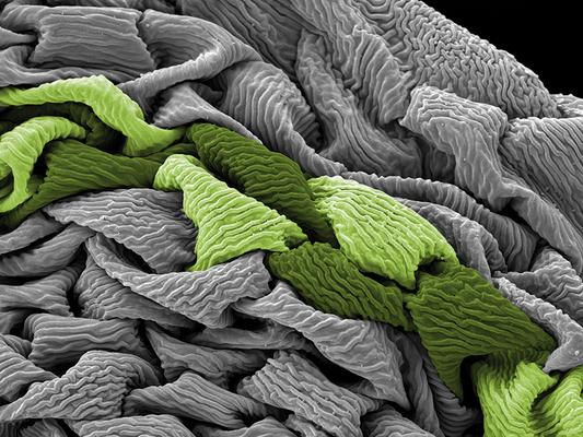 Hechtia podantha - Druck auf Leinwand, 100x75 cm, 2012, REM-Aufnahme: H. Halbritter, Coloration: A. Frosch-Radivo - VERKAUFT